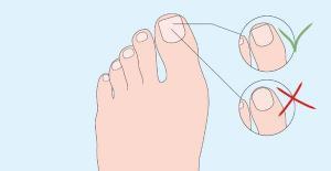Entretenir ses ongles de pied : les conseils de votre Pédicure Podologue